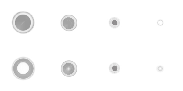 The two kinds of eye floater spheres in transition from the relaxed state (left) to the concentrated state (right).